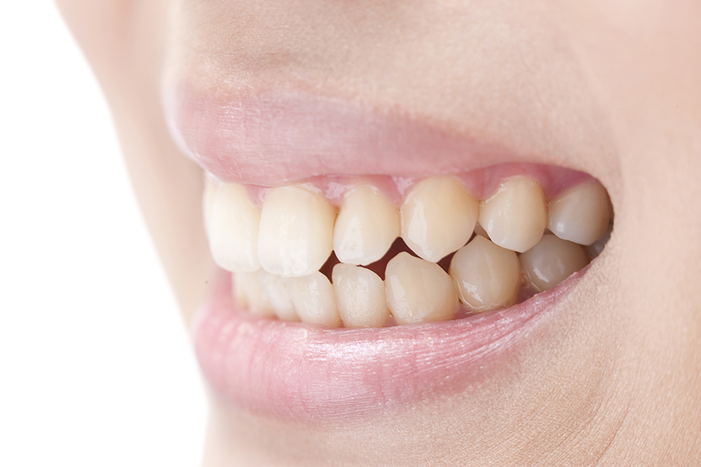 ホワイトニングで、歯を削らずに美しい白さへ