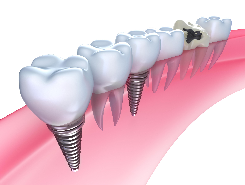 天然歯の「噛む力」と自然な見た目を再現できるインプラント